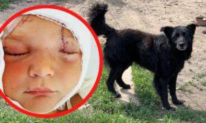 Dwuletni chłopiec został pogryziony przez psa. Ma obrażenia głowy i twarzy