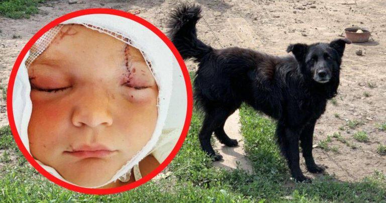 chłopiec pogryziony przez psa