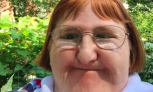Melissa Blake walczy z dyskryminacją w sieci. Nie boi się żadnego hejtu