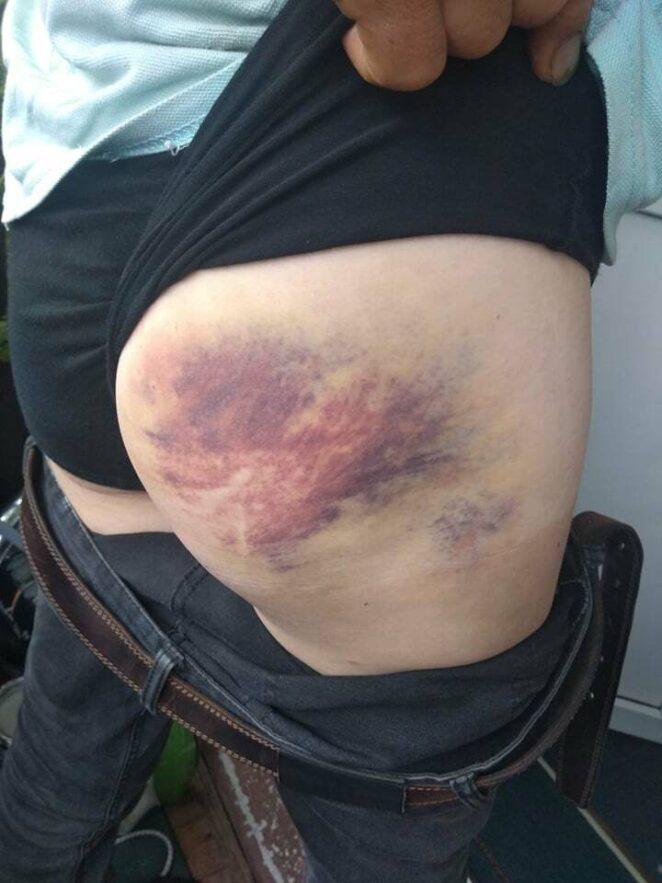 Mężczyzna zaatakowany przez OMON
