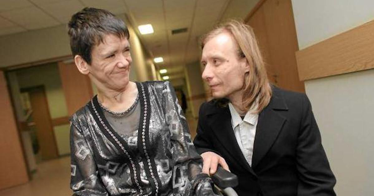 niepełnosprawna kobieta odmawia pomocy