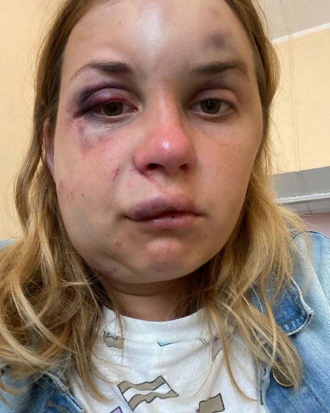 Prezenterka zaatakowana w pociągu