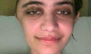 Leżak prawie ją zabił. 24-latka przeżyła, ale jej czaszka jest zdeformowana