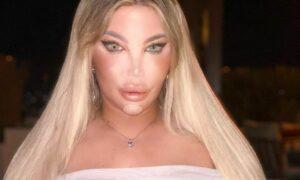 """Jessica Alves jako """"Żywa Barbie"""". Gwiazda przeszła kolejną operację nosa!"""