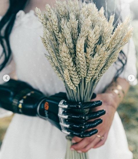mąż odrąbał jej obie dłonie 2