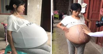 Jej brzuch waży 20 kilogramów
