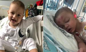 Mały wojownik znów walczy o życie. Marcel z Krotoszyna przeszedł 11 h operację