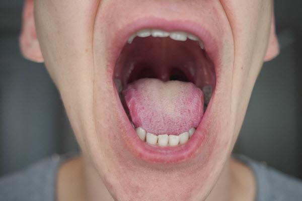 Język covidowy