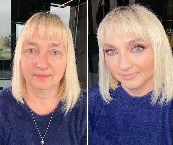 Odmładza kobiety o 20 lat