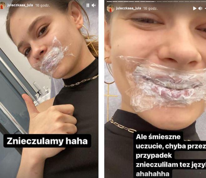 julia wróblewska powiększyła usta
